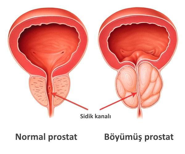 A prosztatitis megkezdi az életkorot)